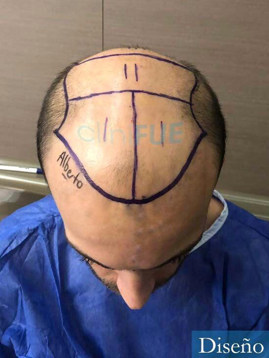 Alberto 27 Valencia trasplante capilar cliniFUE dia operacion diseno 2
