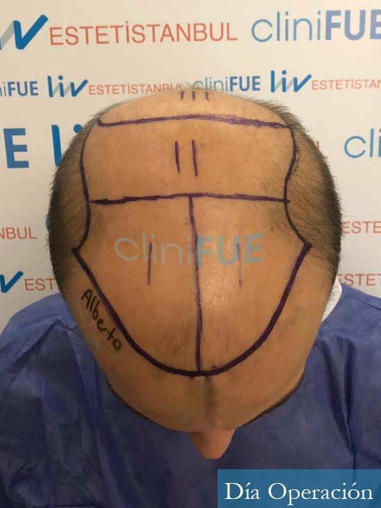 Alberto 27 Valencia trasplante capilar cliniFUE dia operacion diseno 3