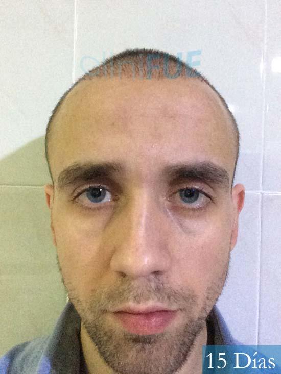 Daniel 27 Madird trasplante capilar turquia 15 dias