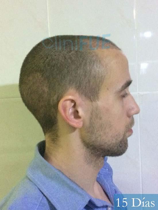 Daniel 27 Madird trasplante capilar turquia 15 dias 4