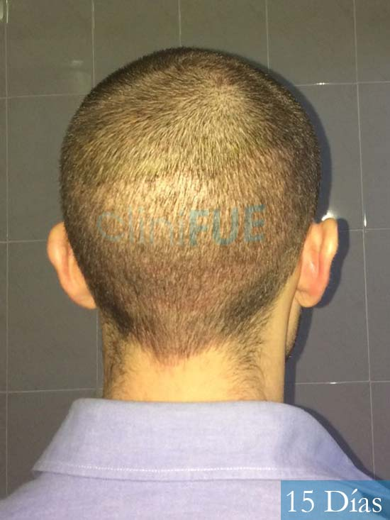 Daniel 27 Madird trasplante capilar turquia 15 dias 5