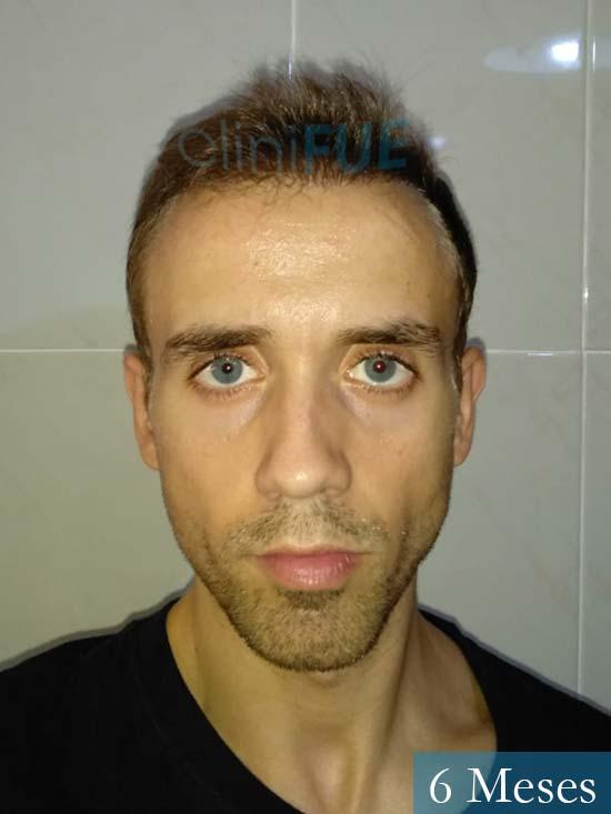 Daniel 27 Madrid injerto de pelo 6 meses