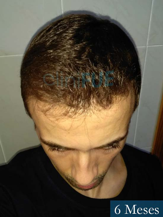 Daniel 27 Madrid injerto de pelo 6 meses 3