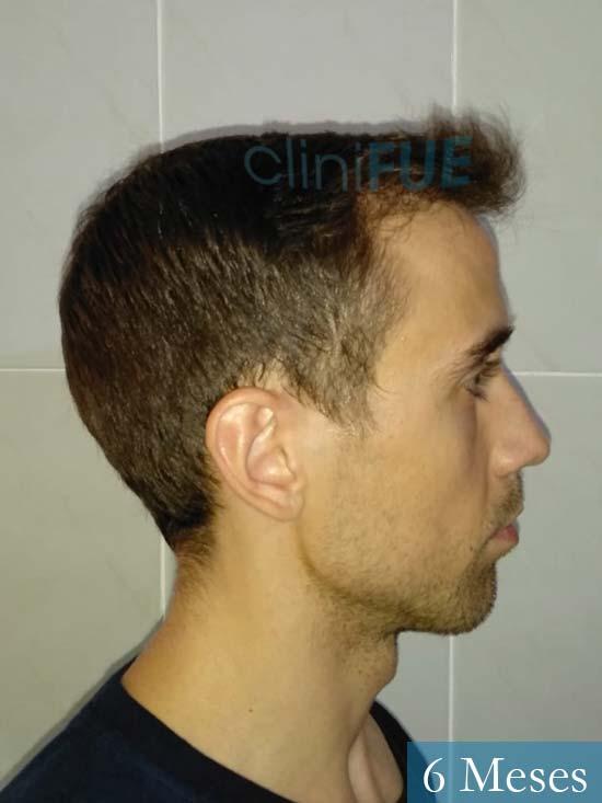 Daniel 27 Madrid injerto de pelo 6 meses 4