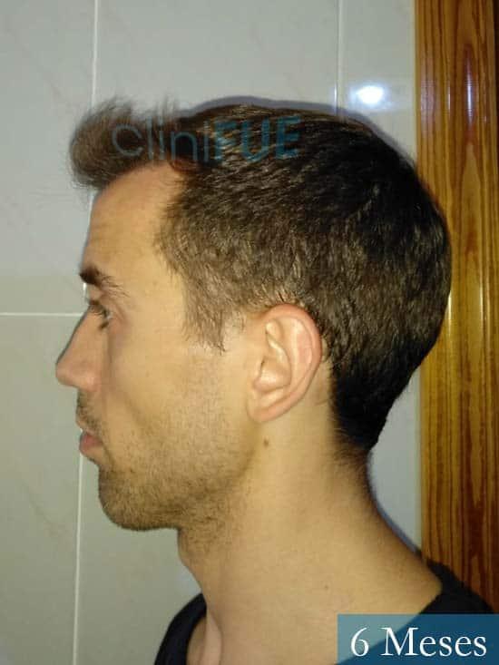 Daniel 27 Madrid injerto de pelo 6 meses 5