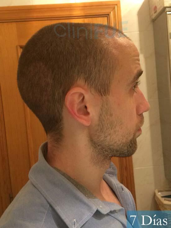 Daniel 27 Madrid injerto de pelo dia operacion 7 dias 3