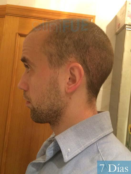 Daniel 27 Madrid injerto de pelo dia operacion 7 dias 4