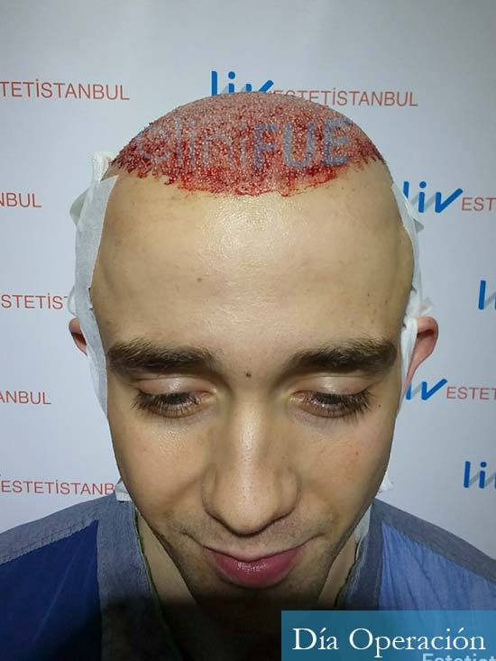 Daniel 27 Madrid injerto de pelo dia operacion dia operacion