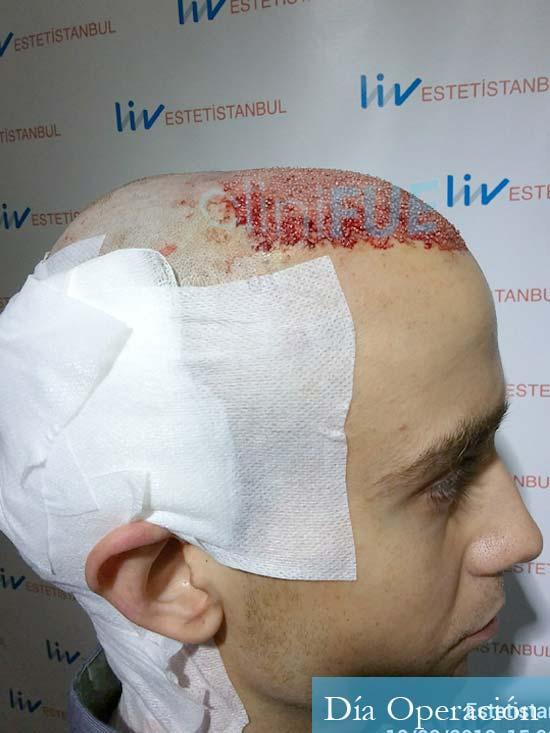 Daniel 27 Madrid injerto de pelo dia operacion dia operacion 3