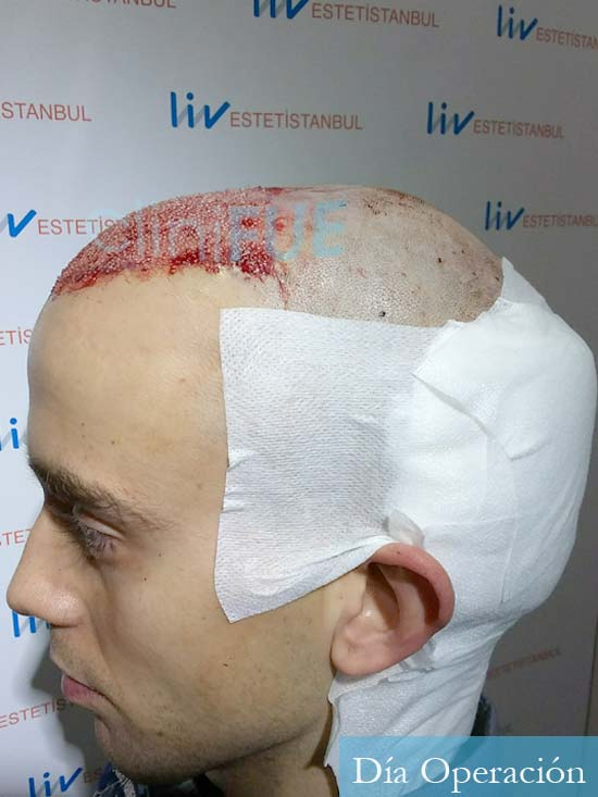 Daniel 27 Madrid injerto de pelo dia operacion dia operacion 5
