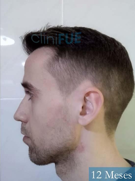 Daniel 27 Madrid injerto de pelo 12 meses 4