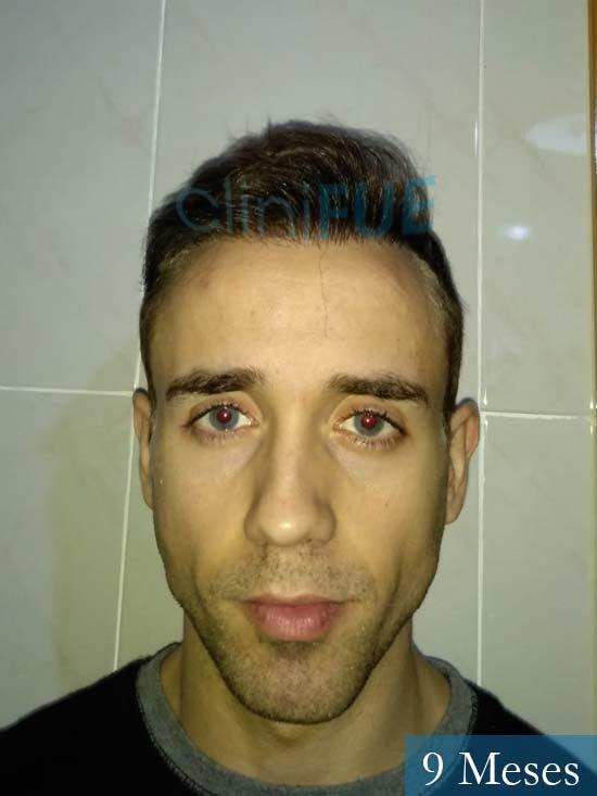 Daniel 27 Madrid injerto de pelo 9 meses