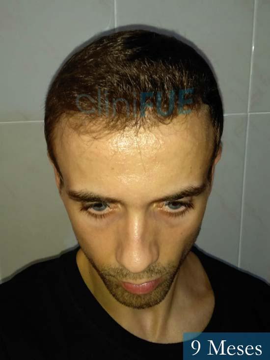 Daniel 27 Madrid injerto de pelo 9 meses 2