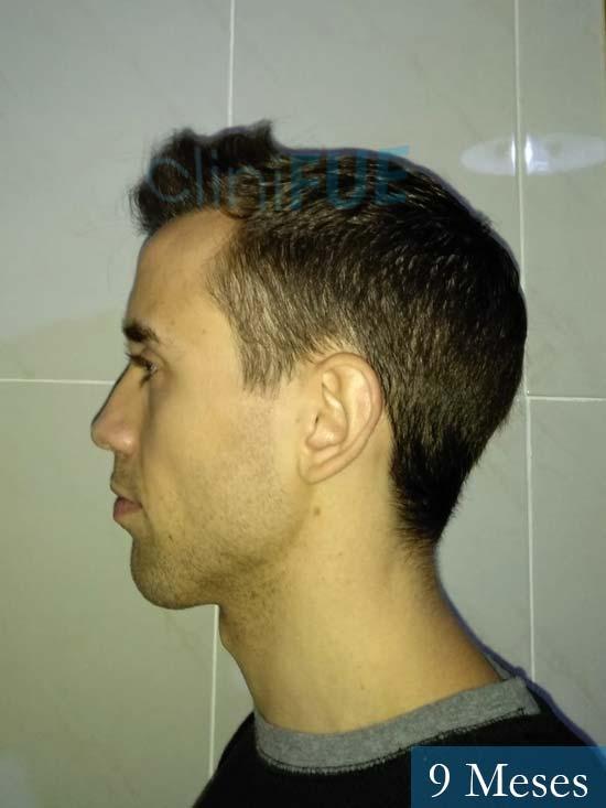 Daniel 27 Madrid injerto de pelo 9 meses 5
