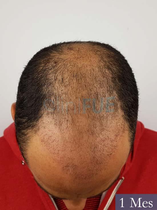 Elias 40 Castellon injerto de pelo 1 mes 3