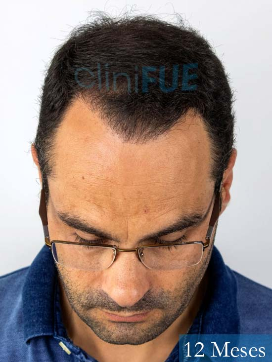 Elias 40 Castellon injerto de pelo 12 meses 2