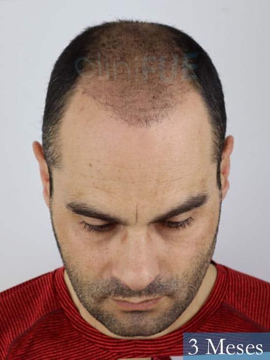 Elias 40 Castellon injerto de pelo 3 meses 2