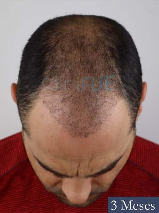 Elias 40 Castellon injerto de pelo 3 meses 3