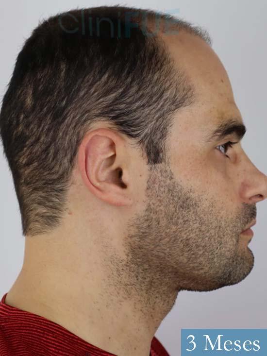 Elias 40 Castellon injerto de pelo 3 meses 4