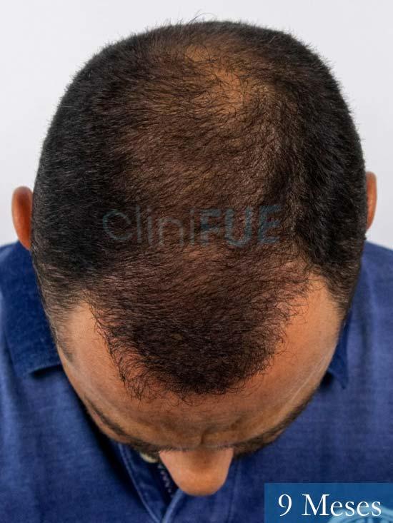 Elias 40 Castellon injerto de pelo 9 meses 3