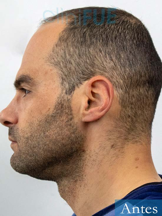 Elias 40 Castellon injerto de pelo antes 4