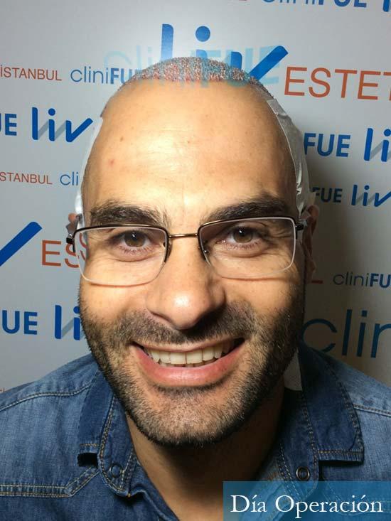 Elias 40 Castellon injerto de pelo dia operacion diseno 2
