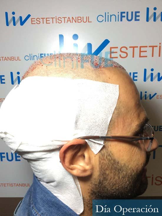 Elias 40 Castellon injerto de pelo dia operacion 3
