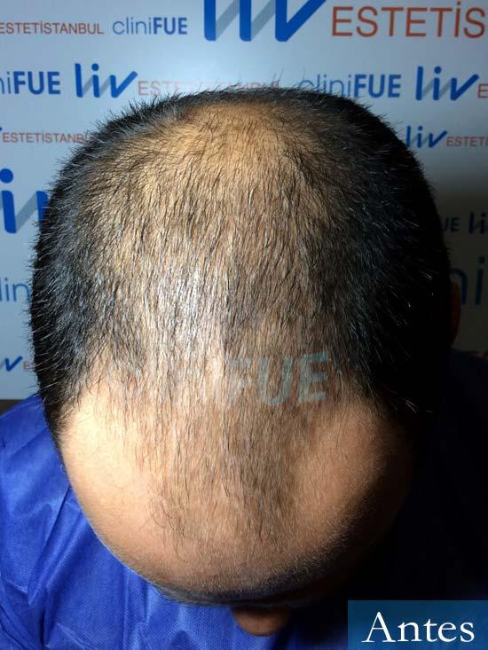 Elias 40 Castellon injerto de pelo antes 2