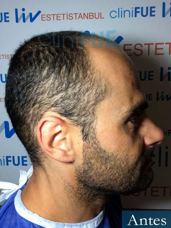 Elias 40 Castellon injerto de pelo antes 3