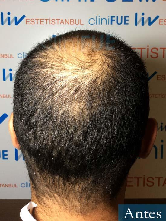 Elias 40 Castellon injerto de pelo antes 5