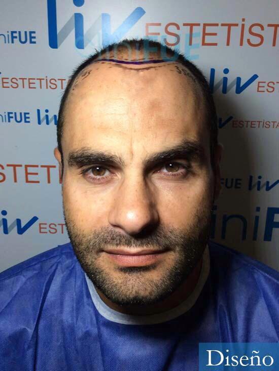 Elias 40 Castellon injerto de pelo dia operacion diseno