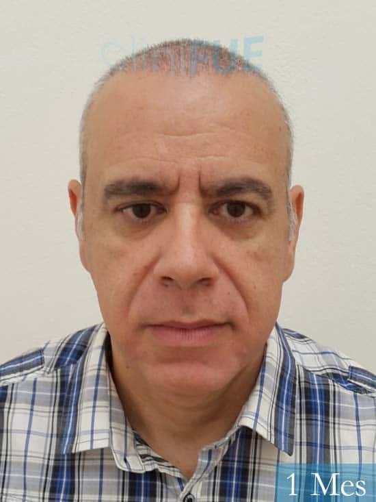 Emiliano 57 Las palmas injerto de pelo 1 mes