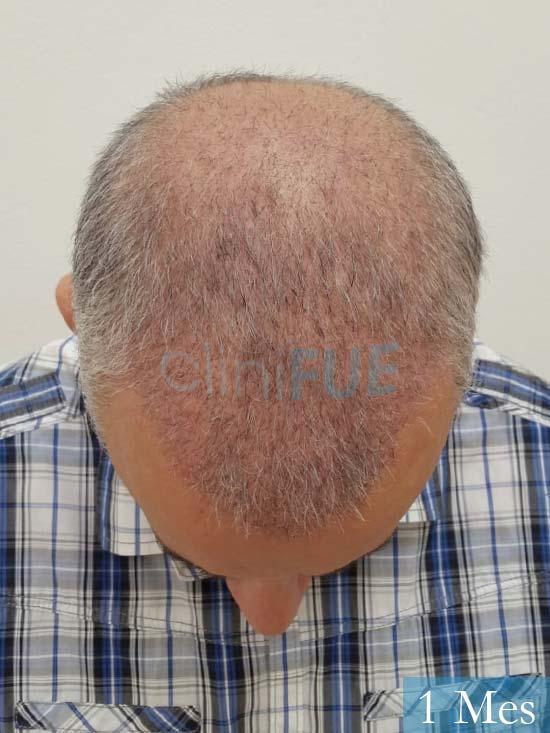 Emiliano 57 Las palmas injerto de pelo 1 mes 3