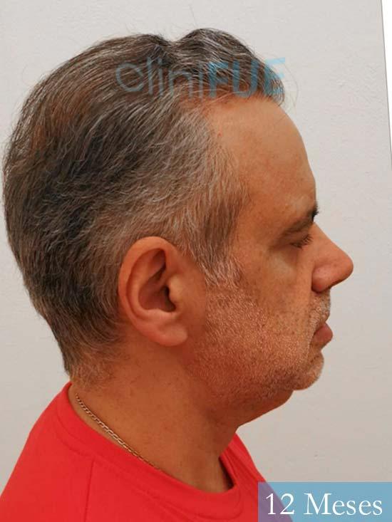 Emiliano 57 Las palmas injerto de pelo 12 meses 4