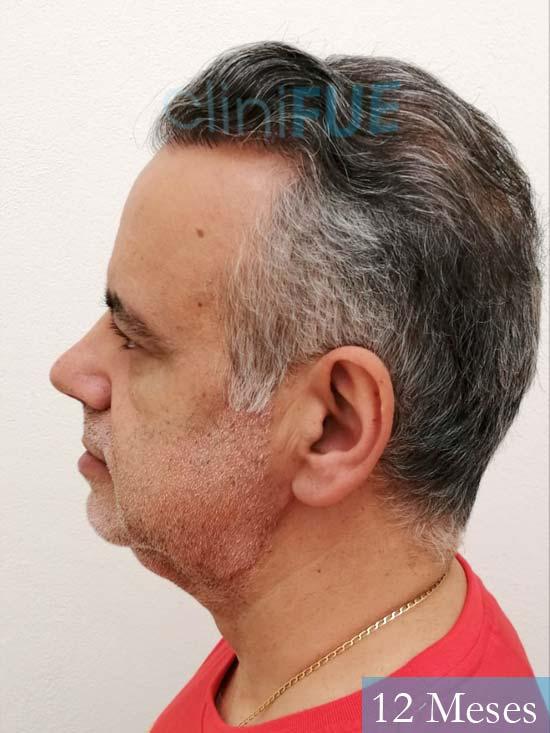 Emiliano 57 Las palmas injerto de pelo 12 meses 5