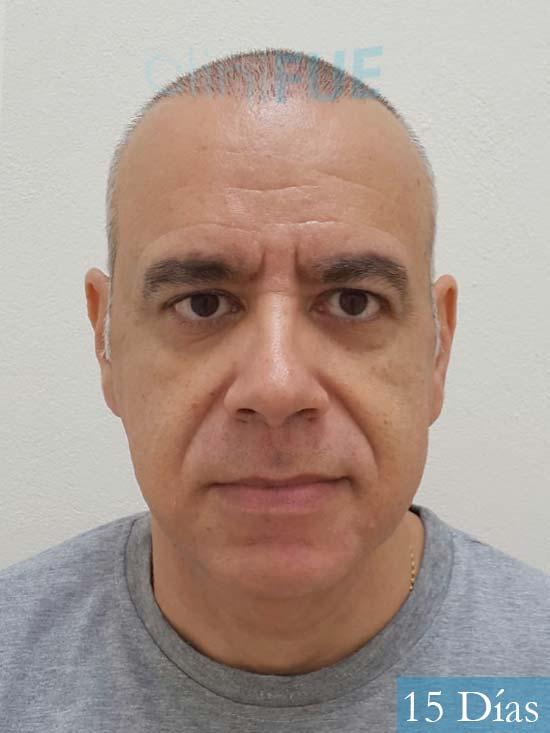 Emiliano 57 Las palmas injerto de pelo 15 dias