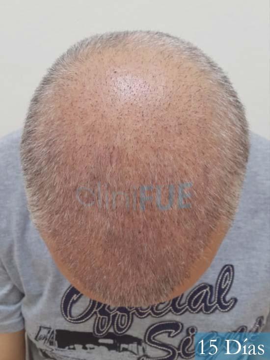 Emiliano 57 Las palmas injerto de pelo 15 dias 3