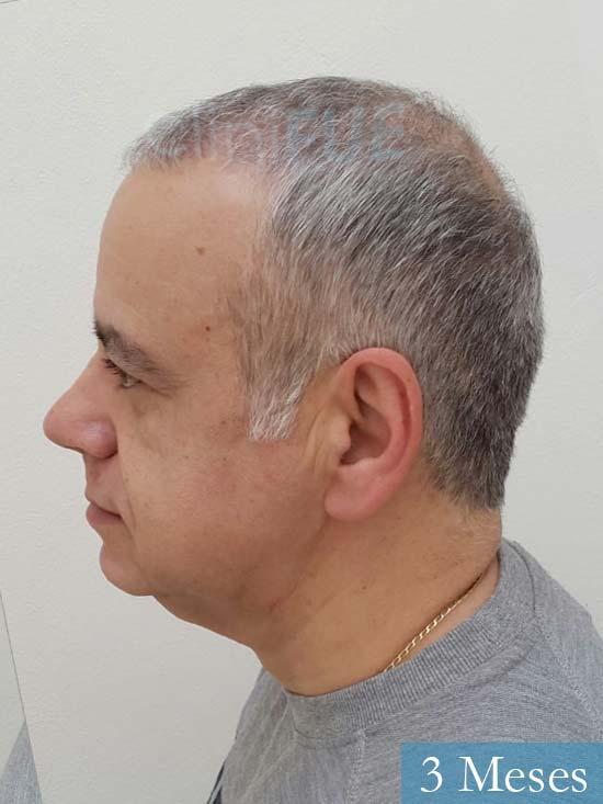 Emiliano 57 Las palmas injerto de pelo 3 meses 5