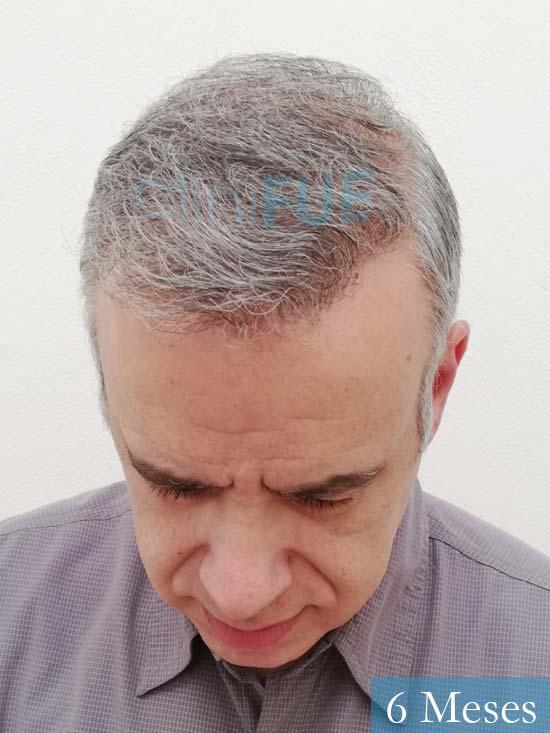Emiliano 57 Las palmas injerto de pelo 6 meses 2