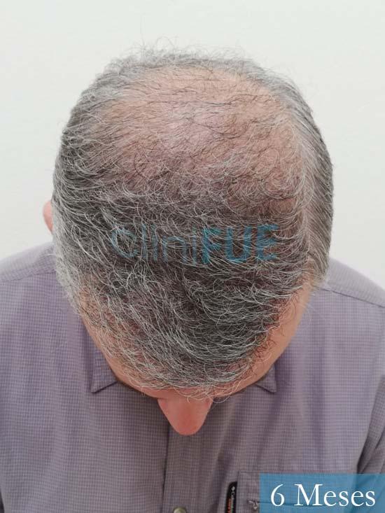 Emiliano 57 Las palmas injerto de pelo 6 meses 3