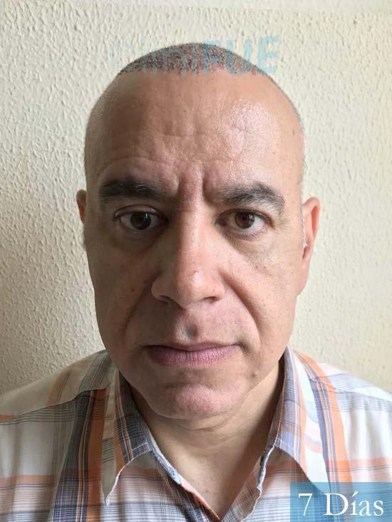 Emiliano 57 Las palmas injerto de pelo 7 dias