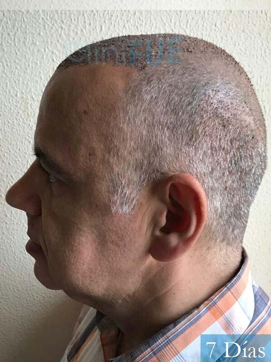 Emiliano 57 Las palmas injerto de pelo 7 dias 4