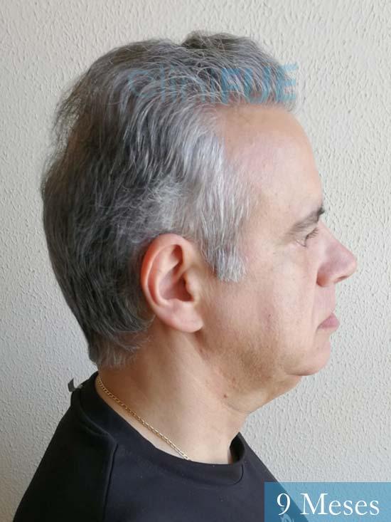 Emiliano 57 Las palmas injerto de pelo 9 meses 4