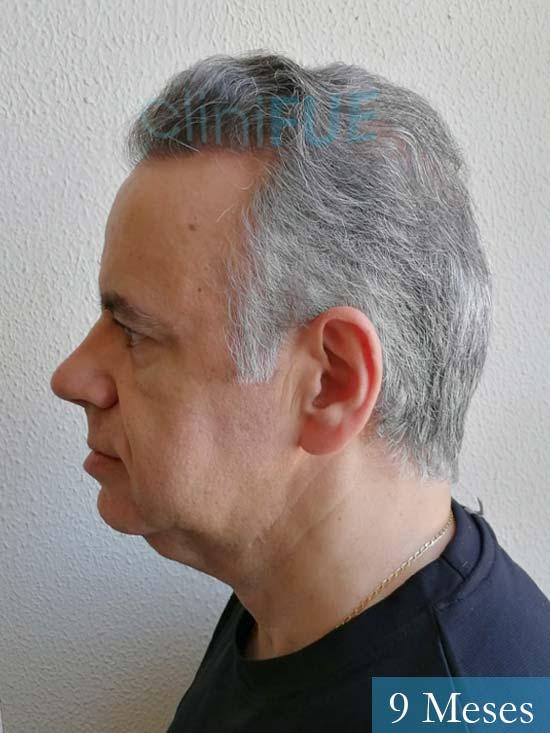 Emiliano 57 Las palmas injerto de pelo 9 meses 5