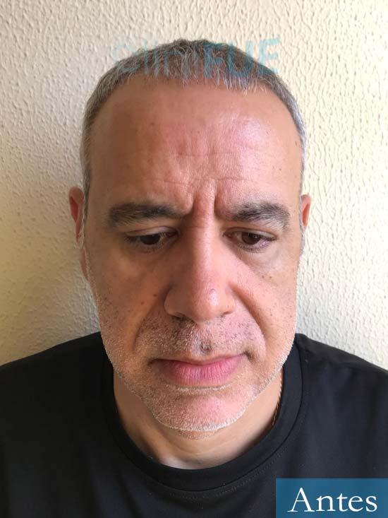 Emiliano 57 Las palmas injerto de pelo Antes