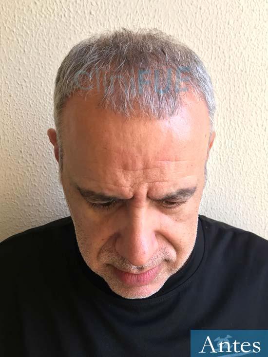 Emiliano 57 Las palmas injerto de pelo Antes 2