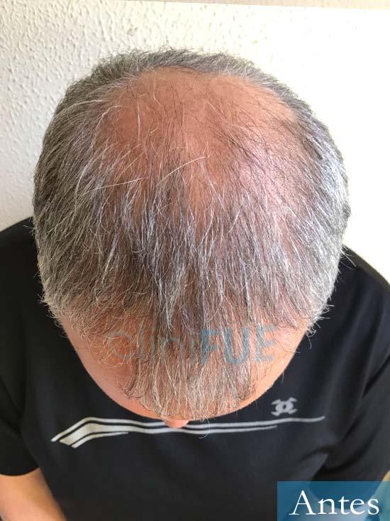Emiliano 57 Las palmas injerto de pelo Antes 3