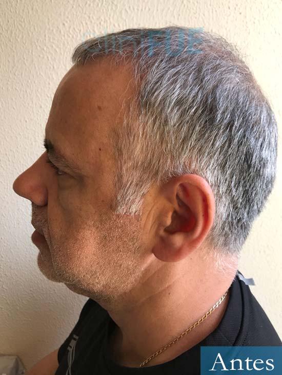 Emiliano 57 Las palmas injerto de pelo Antes 4