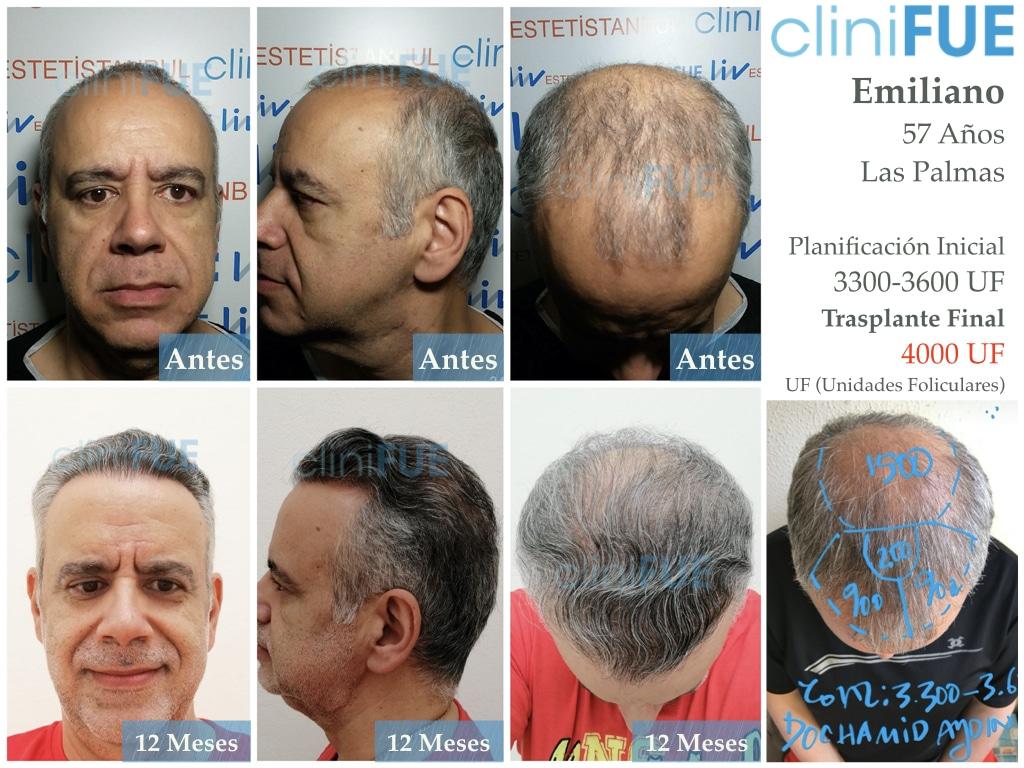 Emiliano 57 Las palmas injerto de pelo