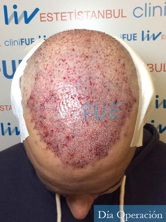 Emiliano 57 Las palmas injerto de pelo dia operacion 2